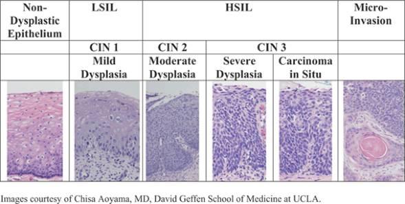 lsil pap smear result pathology document