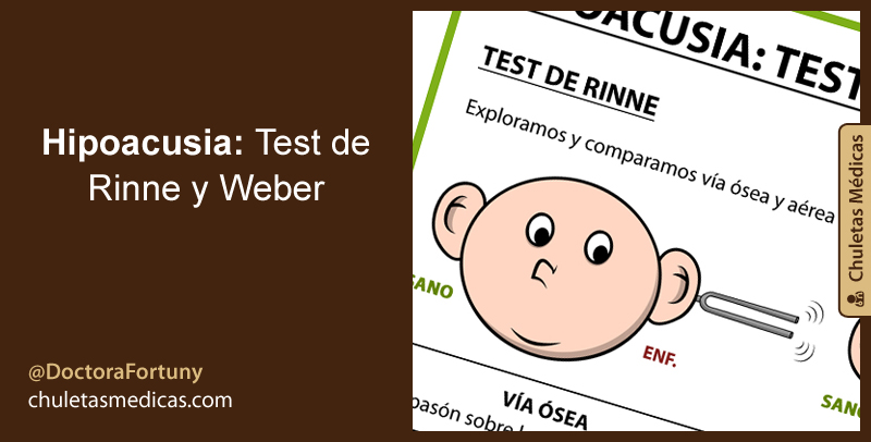 how to document rinne and weber test