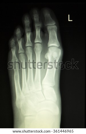 xray results fractured foot document