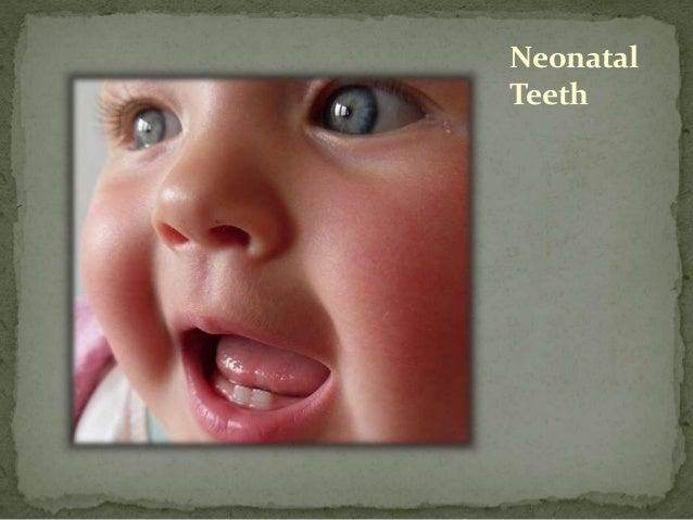 neonatal birth note documentation