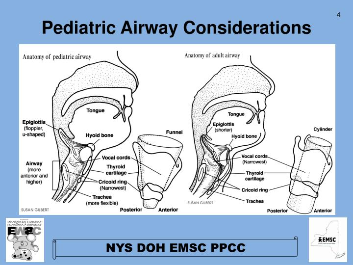 how to document airway pediatric