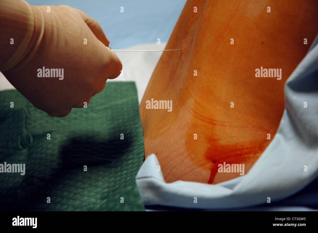 nursing documentation for lumbar puncture
